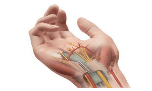 رسم الأعصاب والعضلات